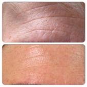 huidverbetering-antiaging-beautyenmore-ulft-gelderland